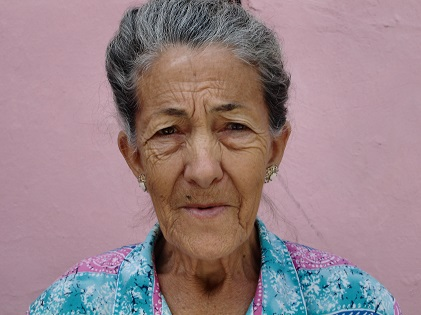 old woman face aging